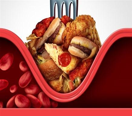 χοληστερίνη διατροφή τροφές